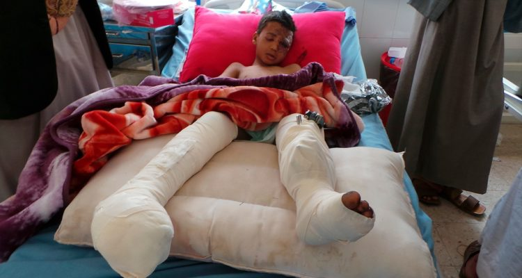 Photo of child in hospital after Yemen airstrike attack
