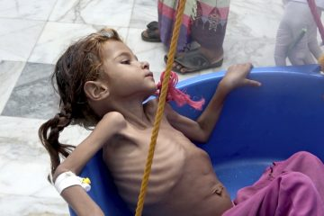 Photo of starving child in Yemen