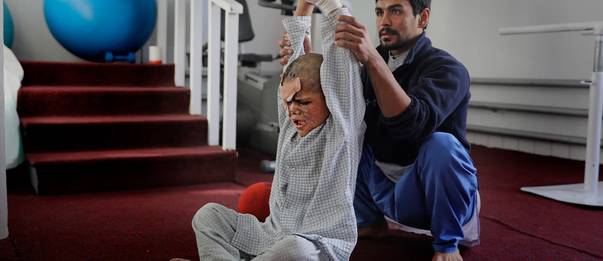 Photo of Afghan physiotherapist helps Eimal stretch
