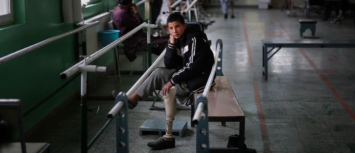 Photo of Abdullah, who lost his left leg when he stepped on an explosive device