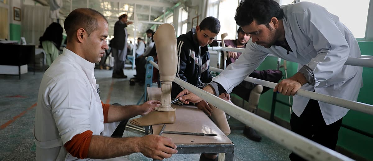 Photo of orthopedic staff adjusting prothesis for Abdullah