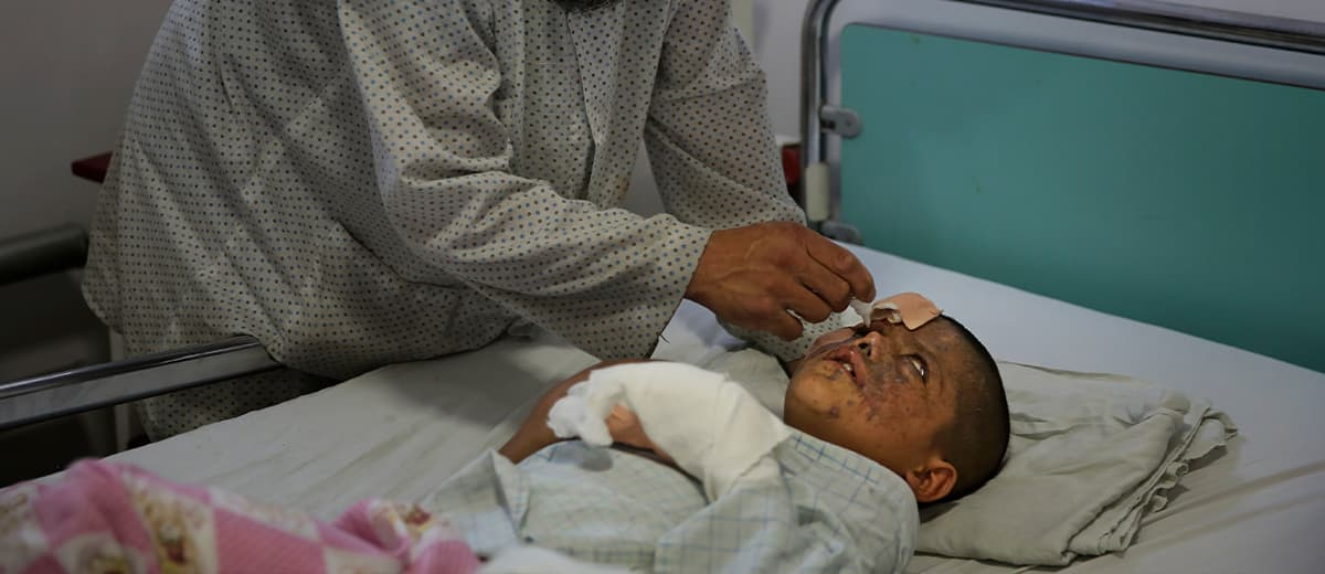 Photo of Ismatullah attending to his son, who lost his right eye