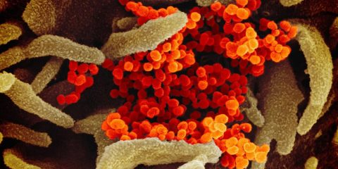 Photo of the coronavirus under a microscope