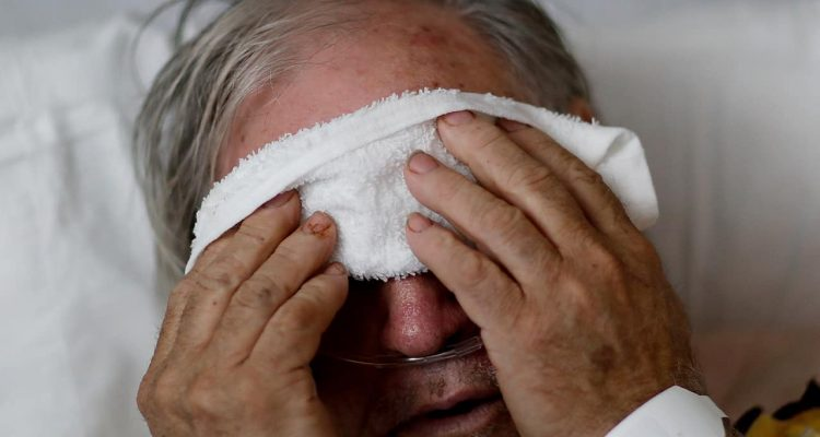 Photo of a man placing a cold compress on his forehead