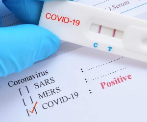 Photo of test sample marked positive for the coronavirus