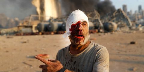Photo of an injured man